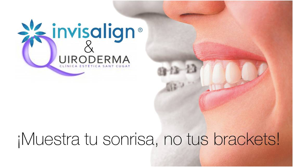 Alternativa a los brackets, Invisalign & Quiroderma