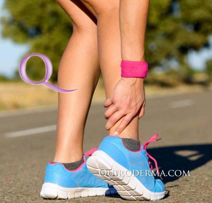 deporte_quiroderma_fisioterapia