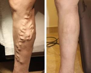 Fotografía comparativa piernas con varices