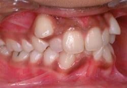 Odontología en Sant Cugat, imagen maloclusión